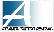 Atlanta Tattoo Removal